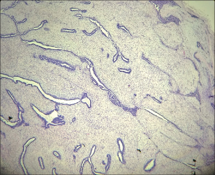 Figure 1: Fibroadenoma, intracanalicular pattern - see fibromyxoid stroma and compressed glandular spaces (H and E, ×100)